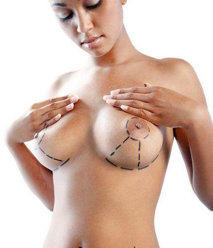 Levantamiento de senos y amamantamiento